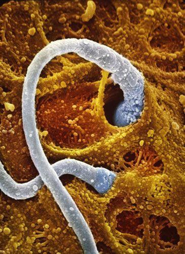 Два сперматозоїда контактують з оболонкою яйцеклітини