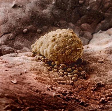 Ембріон, прикріплений до слизової матки (+8 днів).
