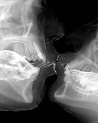 поцілунок під ренгеном